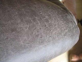 rysy po kocich pazurach - skóra gładka